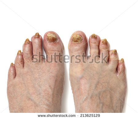 Fungal Infection Stock Photos, Royalty.