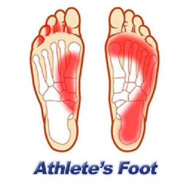 1000+ images about Common Foot & Ankle Conditions & Injuries on.
