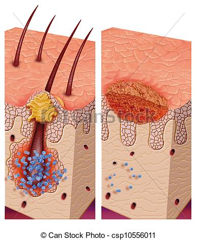 Skin infection Illustrations and Clip Art. 867 Skin infection.