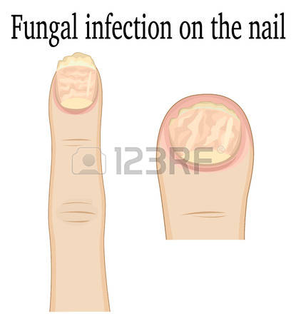 277 Fungal Infection Stock Vector Illustration And Royalty Free.
