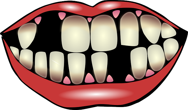 clipart gap in teeth 20 free Cliparts | Download images on ...