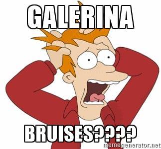 Galerina Bruises????.