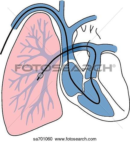 Stock Illustrations of Heart/lung illustration of placement of.