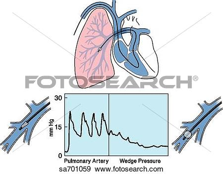 Stock Illustration of Heart/lung illustration of placement of Swan.