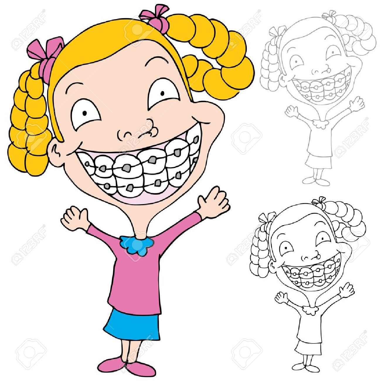 An Image Of A Girl Wearing Braces. Royalty Free Cliparts, Vectors.