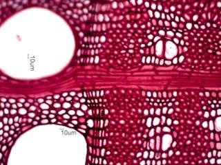Gleditsia triacanthos, Honey Locust Under the Microscope.