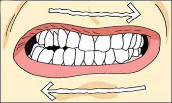 Grinding Teeth Clipart.