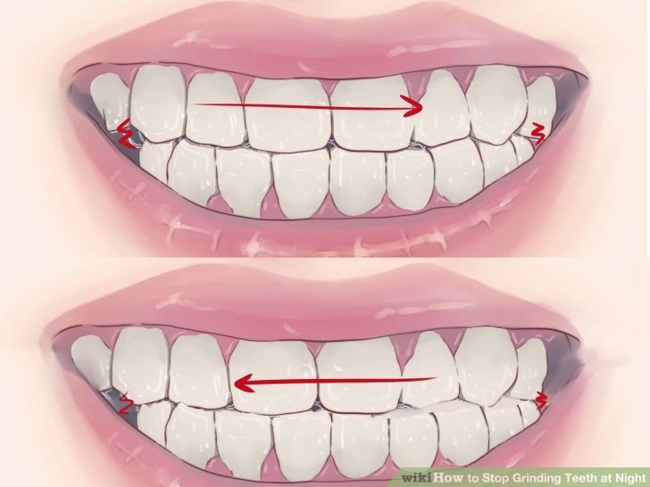 How to Stop Grinding Teeth at Night: 14 Steps (with Pictures).