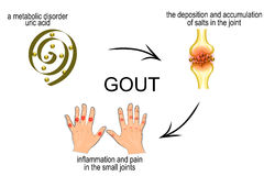 Gout Stock Illustrations.
