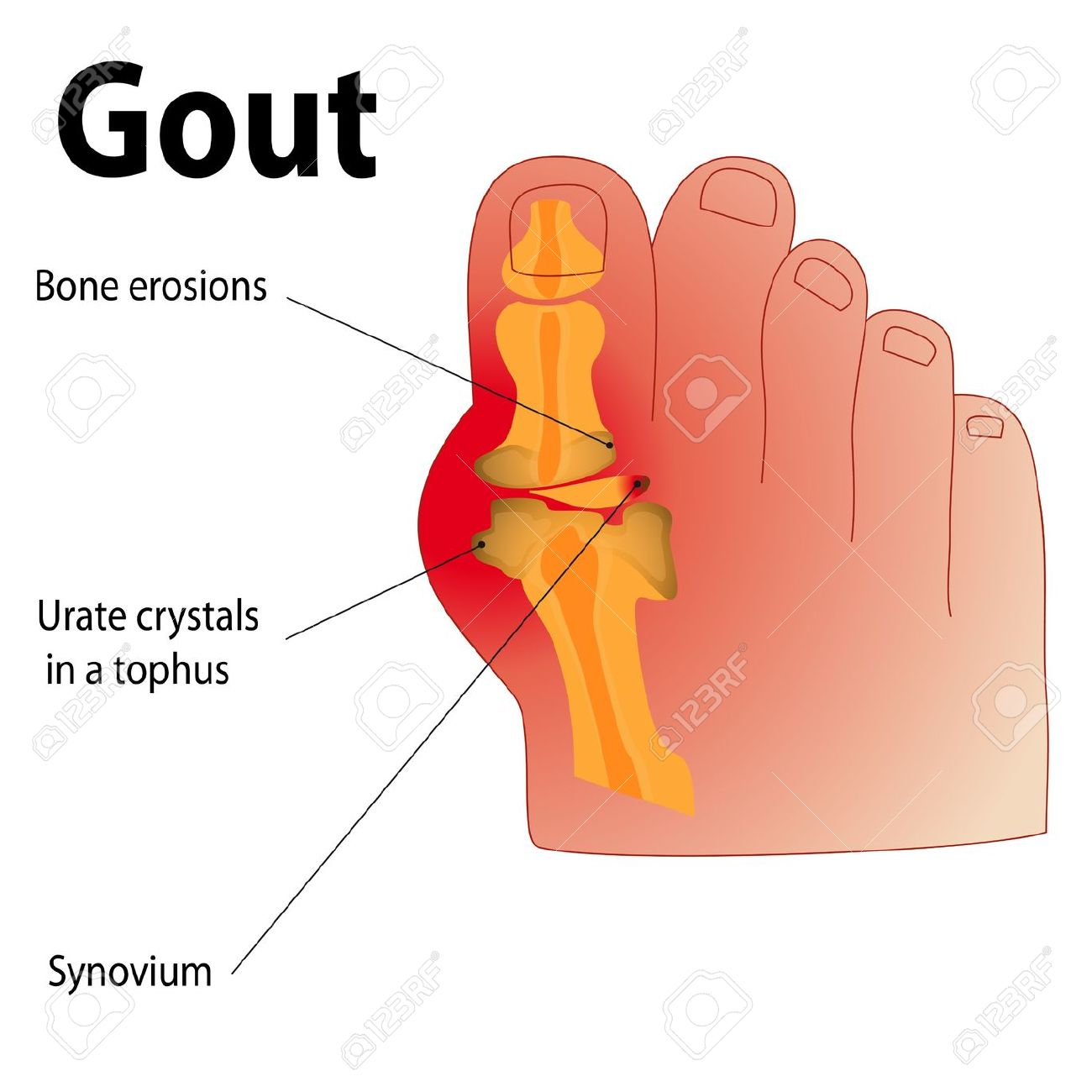 The Gout in Toe Clip Art.