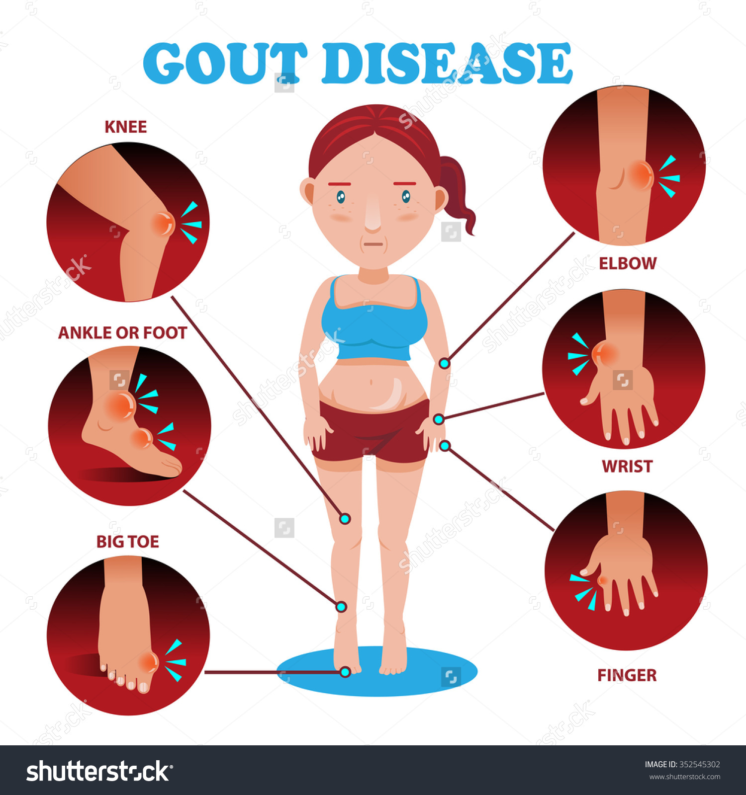 Gout sore foot Read More ArticlesGuidesDoctor Advices
