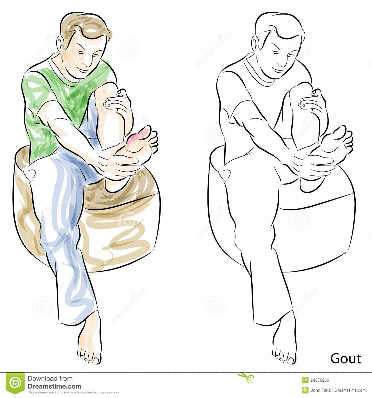 Gout Feet Clip Art.