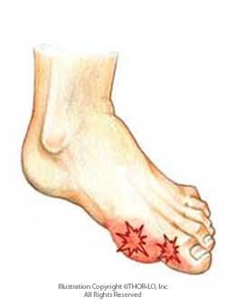 Gout Clipart.