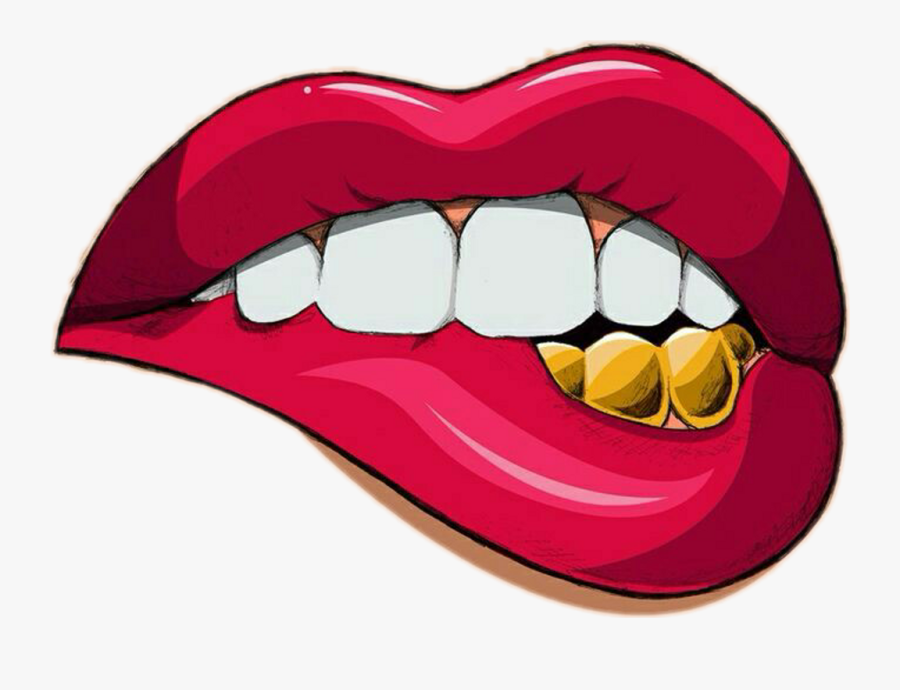 Tooth With Braces Clipart.