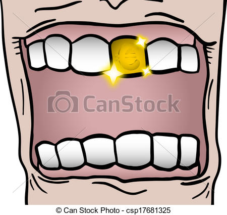 Vector Illustration of Gold tooth.