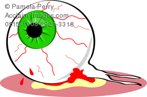 Clip Art Image of an Eyeball Popped Out and Bloodshot.