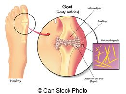 Gout Stock Illustrations. 340 Gout clip art images and royalty.