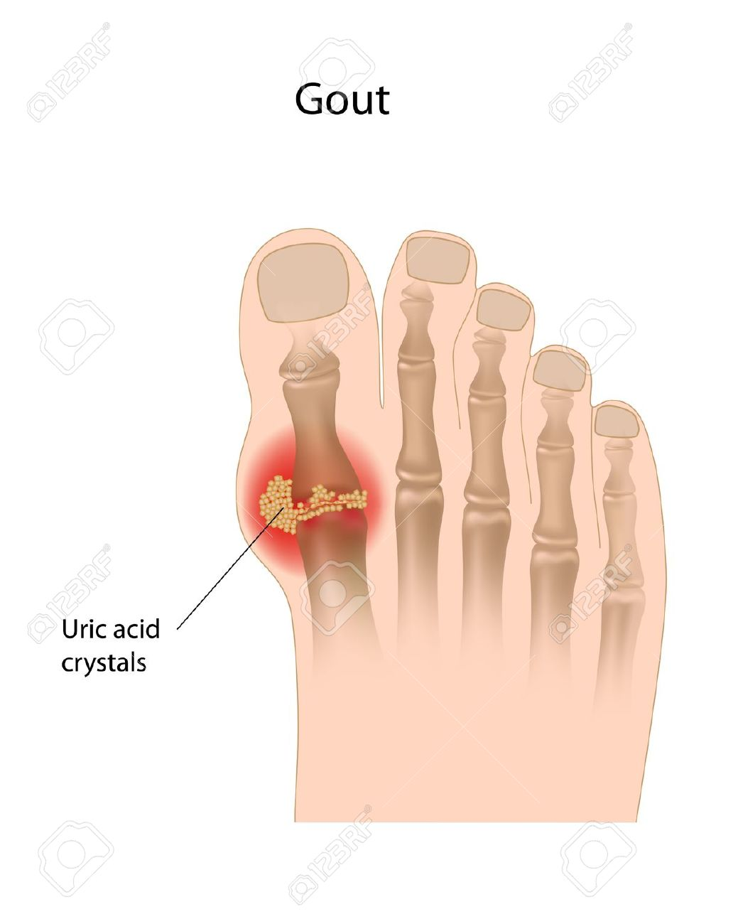419 Gout Stock Illustrations, Cliparts And Royalty Free Gout Vectors.