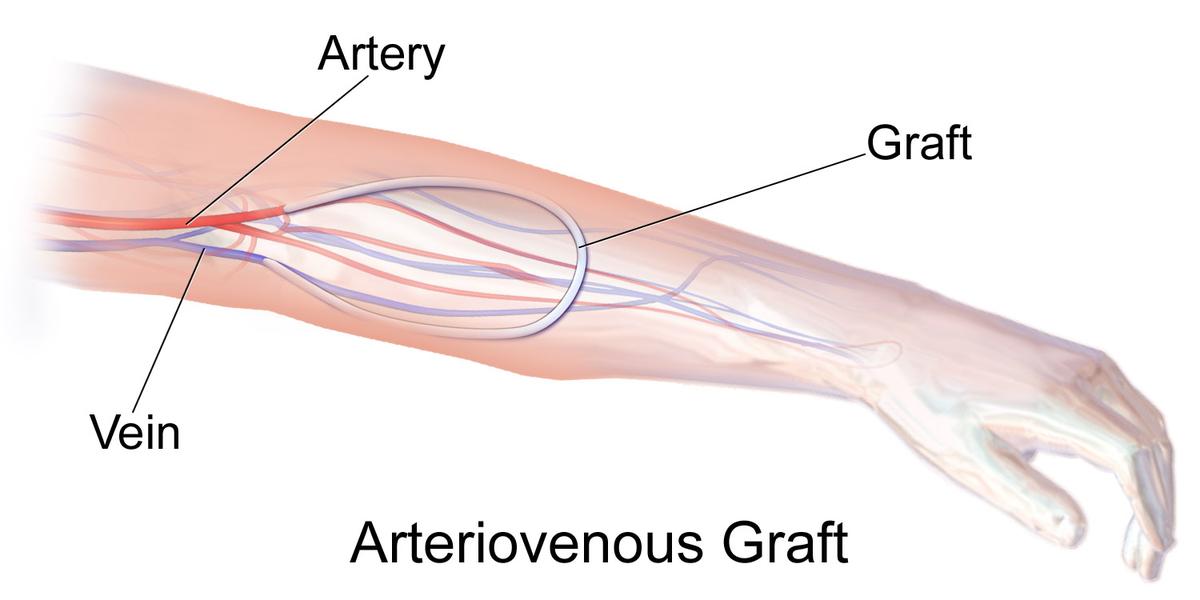 Clip Art Arteriovenous Graft.