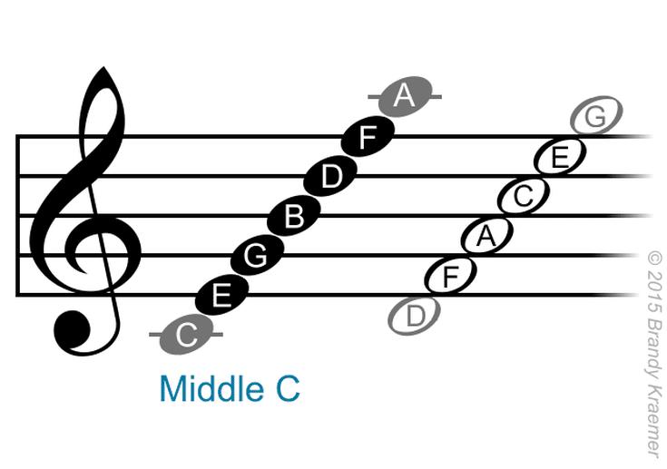 a music staff.