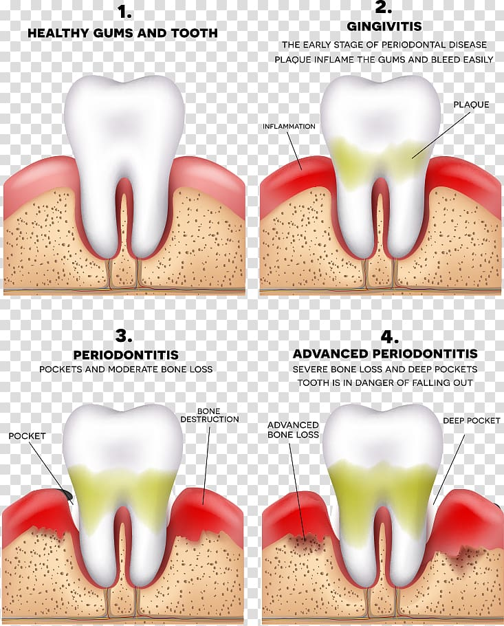 Four tooth chart, Periodontitis Disease Gums Periodontology.