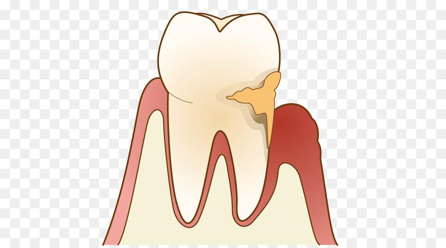 Periodontal disease Gums 歯科 Dentist Dental plaque.