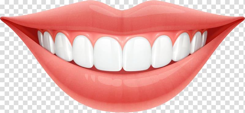 Periodontal disease Dentistry Periodontology Gums Oral.
