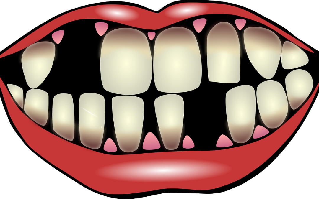 Tooth clipart gum disease, Tooth gum disease Transparent.
