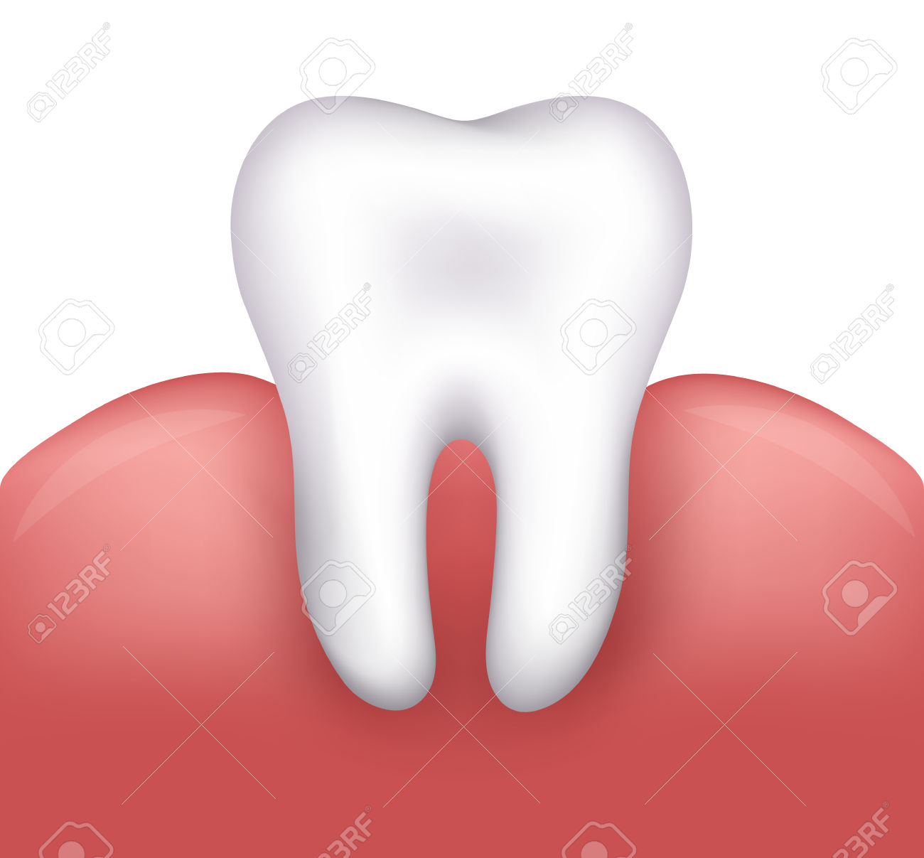 Beautiful Healthy Tooth And Gums Dental Illustration Royalty Free.