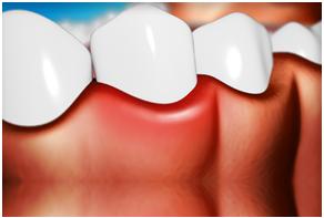 Gum Disease Clip Art.