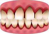 Clip Art of teeth and gums, dental plaque k10566468.
