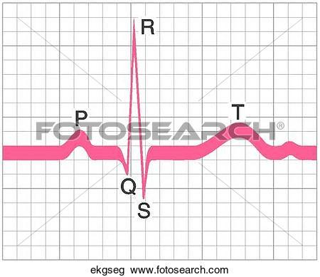 Clip Art of EKG Segment ekgseg.