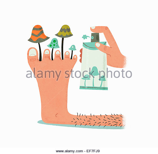Fungal Infection Stock Photos & Fungal Infection Stock Images.