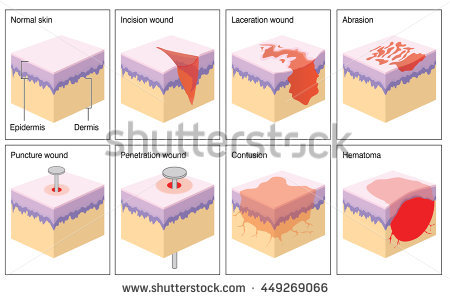 Hematoma Stock Images, Royalty.