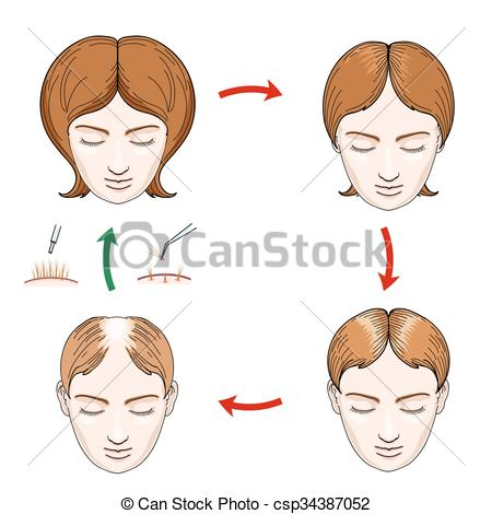 Clipart Vector of Female hair loss and transplantation icons.
