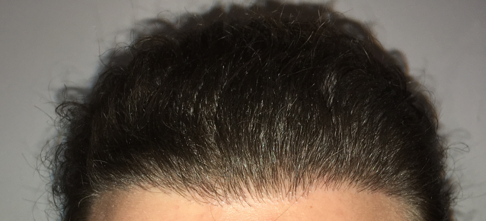 Should I Use Nape Hair For My Hairline? [pics].