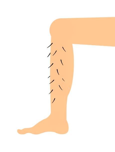 Best Hairy Legs Illustrations, Royalty.
