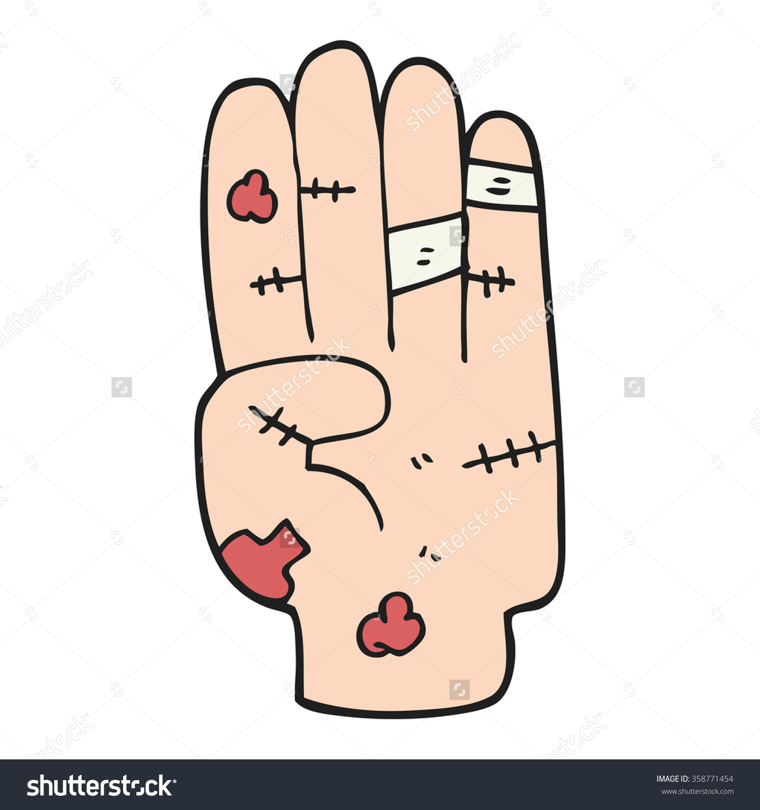 Hand injury clipart.