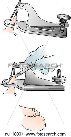 Stock Illustration of The technique of performing circumsion is.