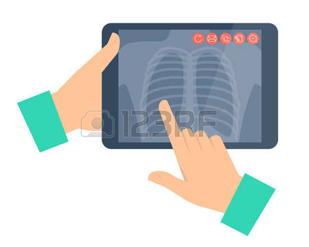 256 Chest Radiography Stock Vector Illustration And Royalty Free.