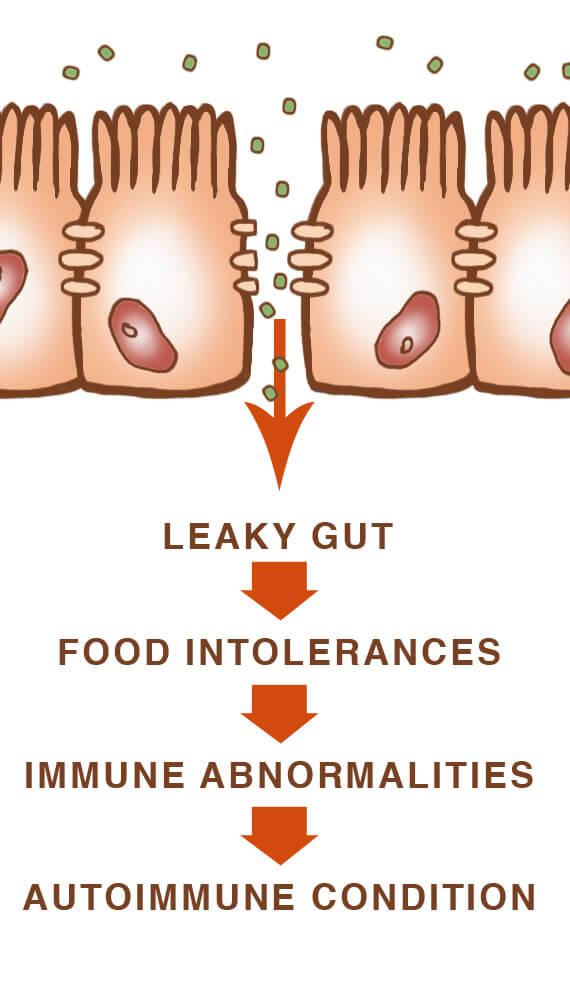 Healthticket: 4 Steps to Heal Leaky Gut and Autoimmune Disease.