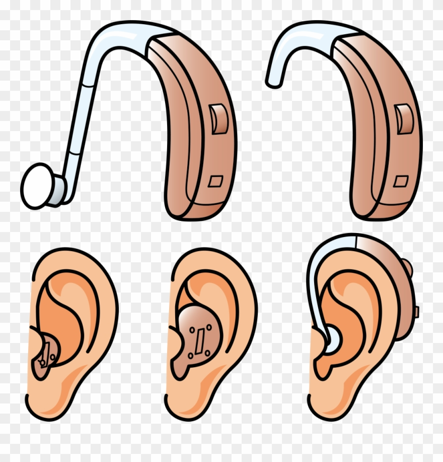 Hearing Aid Hearing Loss Clipart (#3074868).