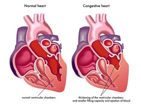 143 Congestive Heart Failure Stock Illustrations, Cliparts And.