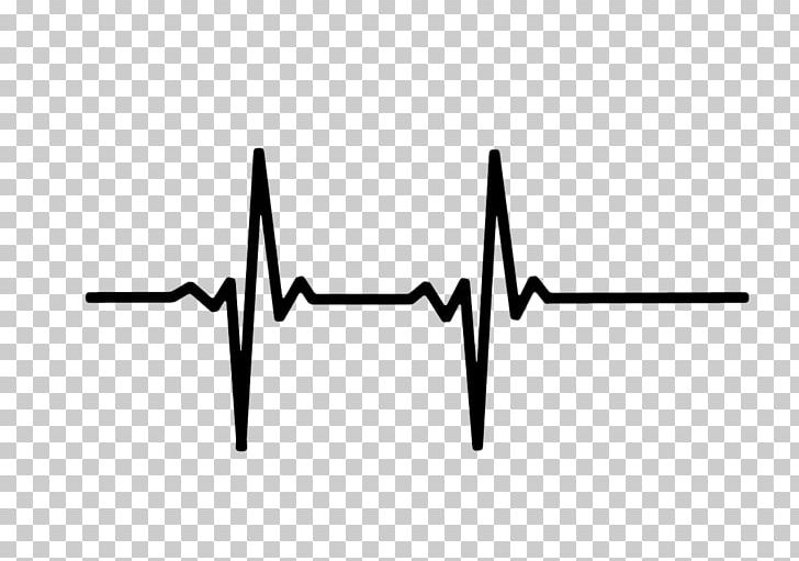 Heart Rate Monitor Pulse Electrocardiography PNG, Clipart, Ami.