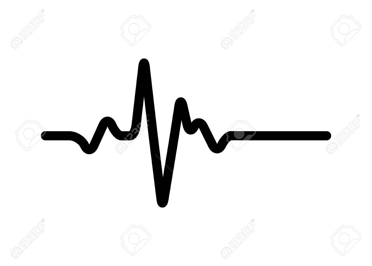 heart rhythm, Electrocardiogram, ECG.