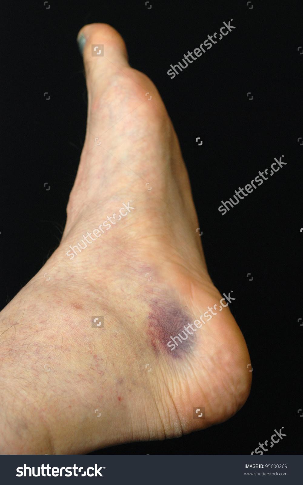 Hematoma Foot Stock Photo 95600269.