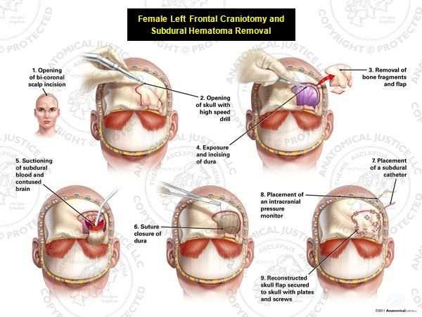1000+ images about Subdural Hematoma on Pinterest.