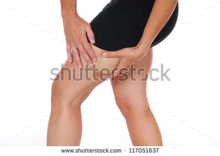 Young Woman Hematoma Her Upper Thighs Stock Photo 96161294.