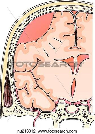 Clip Art of Coronal section through the skull and brain reveals a.