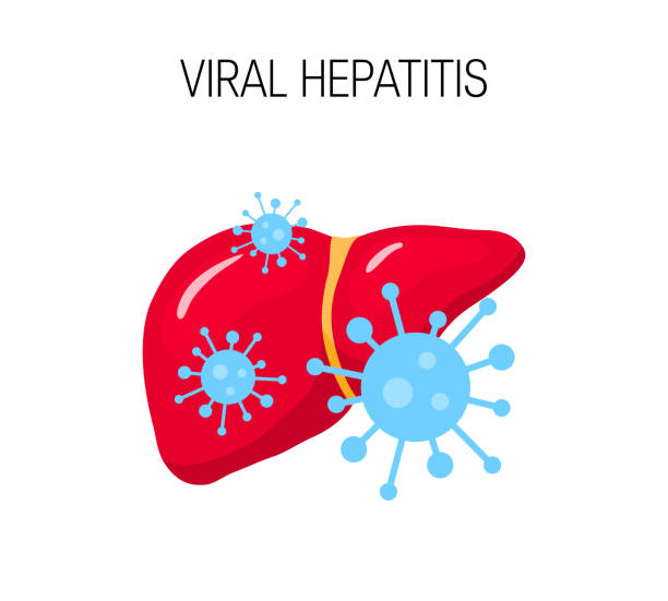 Best Hepatitis Illustrations, Royalty.